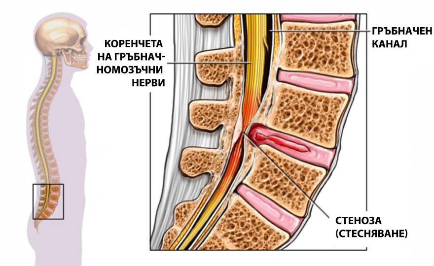 Лечение и диагностика на спинална стеноза в Американска..